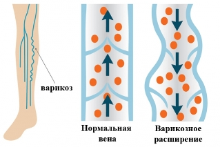 varicose-vein-prichiny