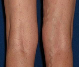 varicose veins in the legs,