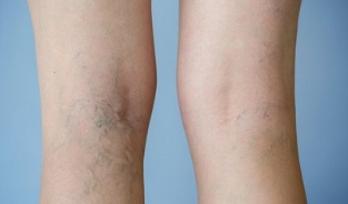 signs of varicose veins in the legs in women