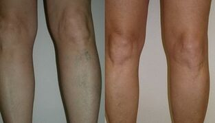 the main manifestations of varicose veins in men